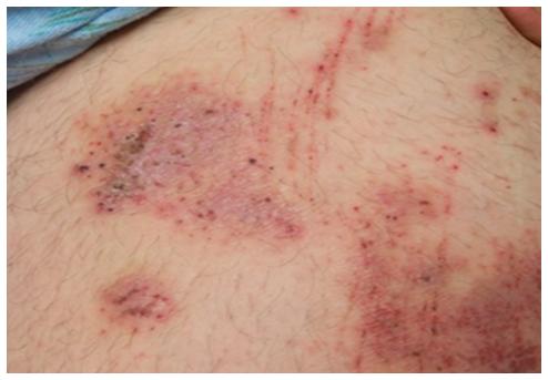 異位性皮膚炎常見的病灶為皮膚乾燥、搔癢難耐、紅疹、流血、流組織液,長期下來,甚至造成皮膚苔癬化,皮膚變紅、皮紋變深。