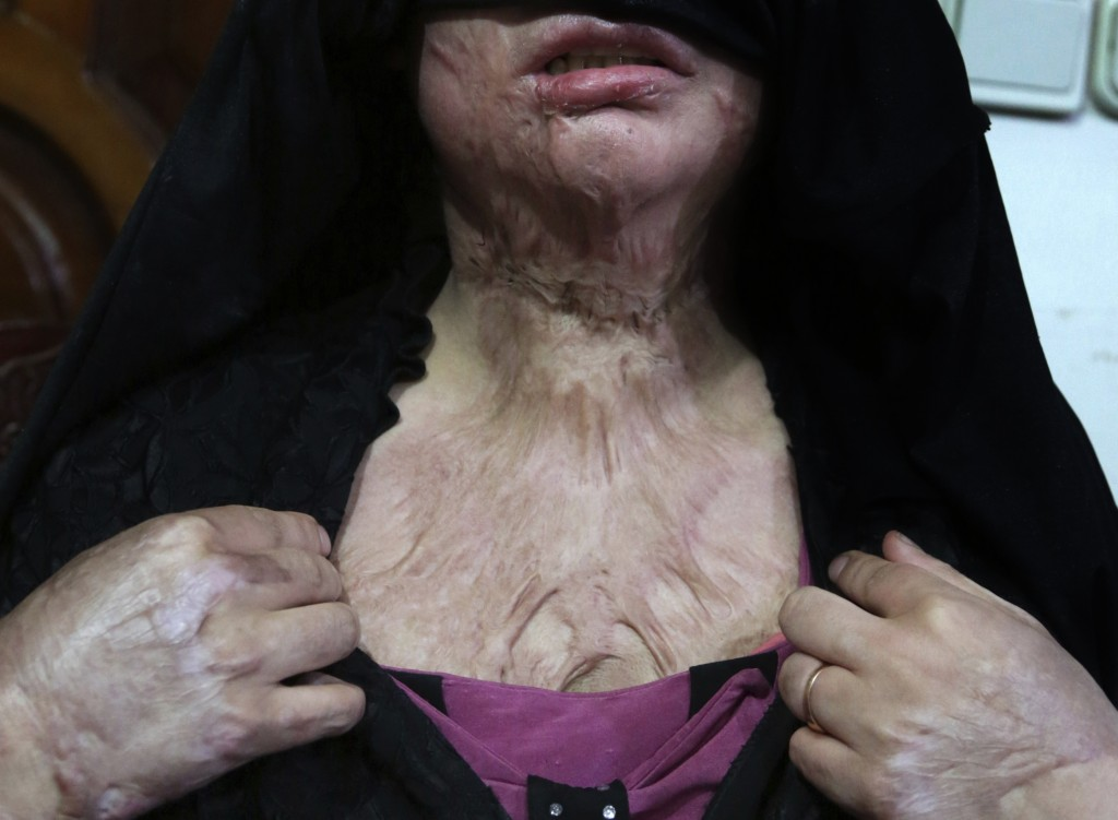 In this Monday, Feb. 18, 2019, photo, Khadeja, 16, who was burned by a pot of scalding hot water thrown by her husband, shows her wounds, at a women's...