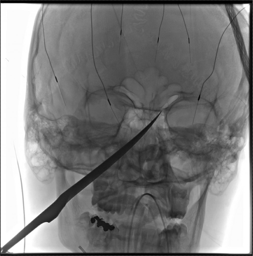 This X-Ray imagery provided by The University of Kansas Health System shows the skull of Eli Gregg with a knife embedded. The 15-year-old Kansas boy i...