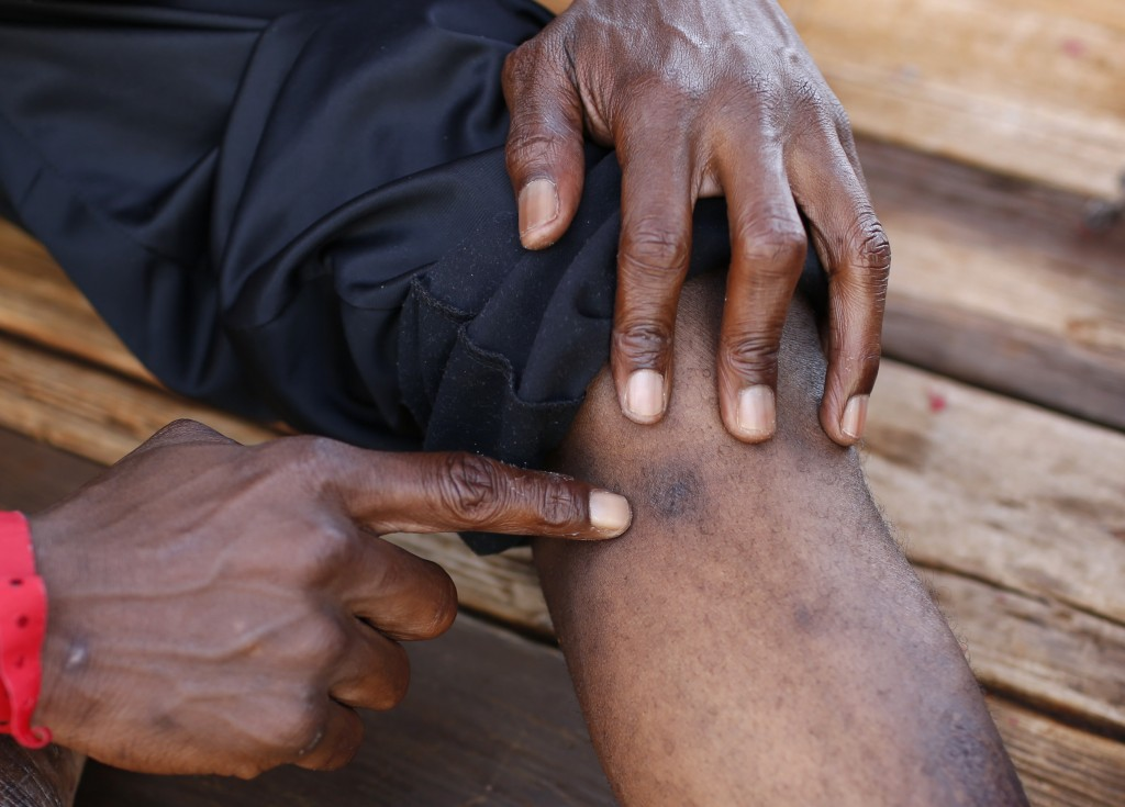 Mouctar Diallo, from Guinea, points at a scar on his leg he claims is from a bullet wound suffered in Libya as he sits aboard the Ocean Viking humanit...