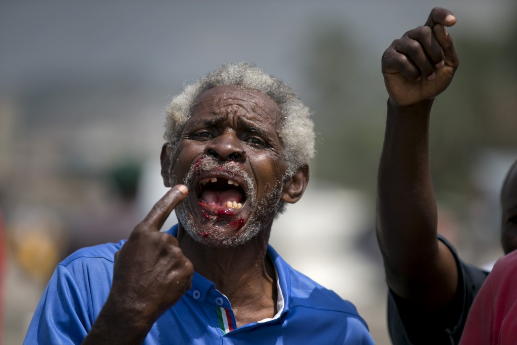 In this Sept. 11, 2019 photo, a demonstrator that was injured in the mouth by a rubber bullet fired by the police, protests during clashes in front of