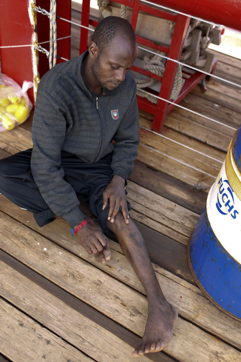 Mouctar Diallo, from Guinea, shows scars on his leg he claims were from violence suffered in Libya as he sits aboard the Ocean Viking humanitarian res...