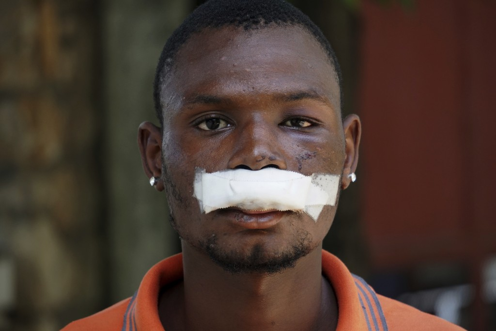 John Carey, 21-years-old, who was injured during Friday's protests, poses for photos in Port-au-Prince, Haiti, Sunday, Sept. 29, 2019. Haitian opposit...