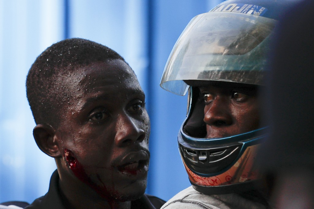 A man who was hit in the cheek by an unknown projectile, fired by police, boards a motorcycle to be taken to the hospital, after protestors calling fo...
