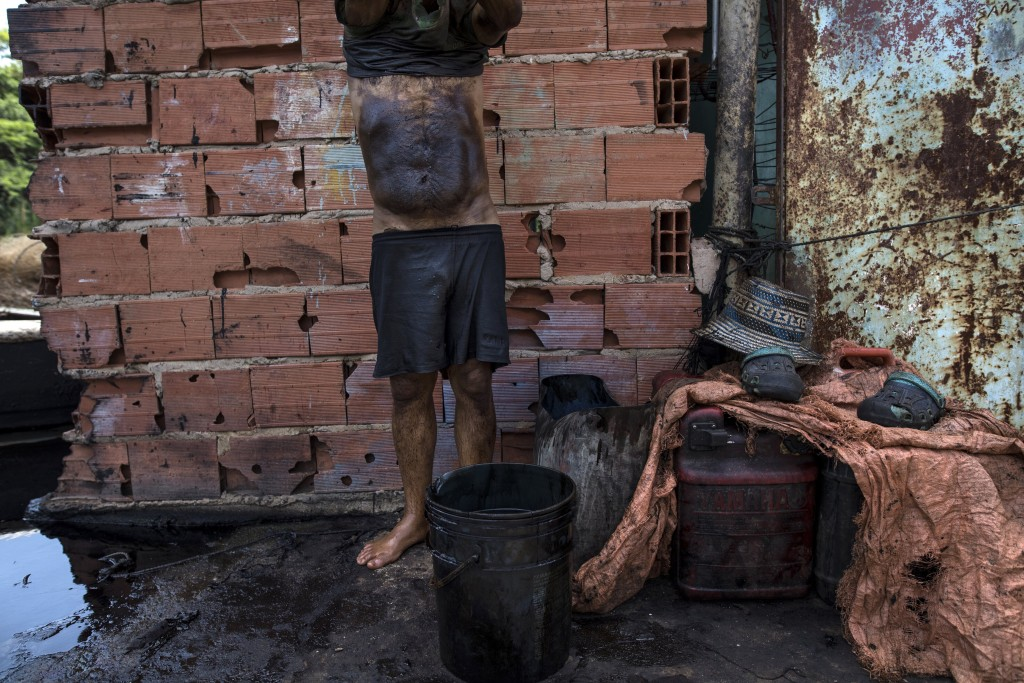 Fisherman Manuel Nune's stomach is covered in oil, as he cleans up after a day of crab fishing on Lake Maracaibo in Cabimas, Venezuela, July 4, 2019. ...