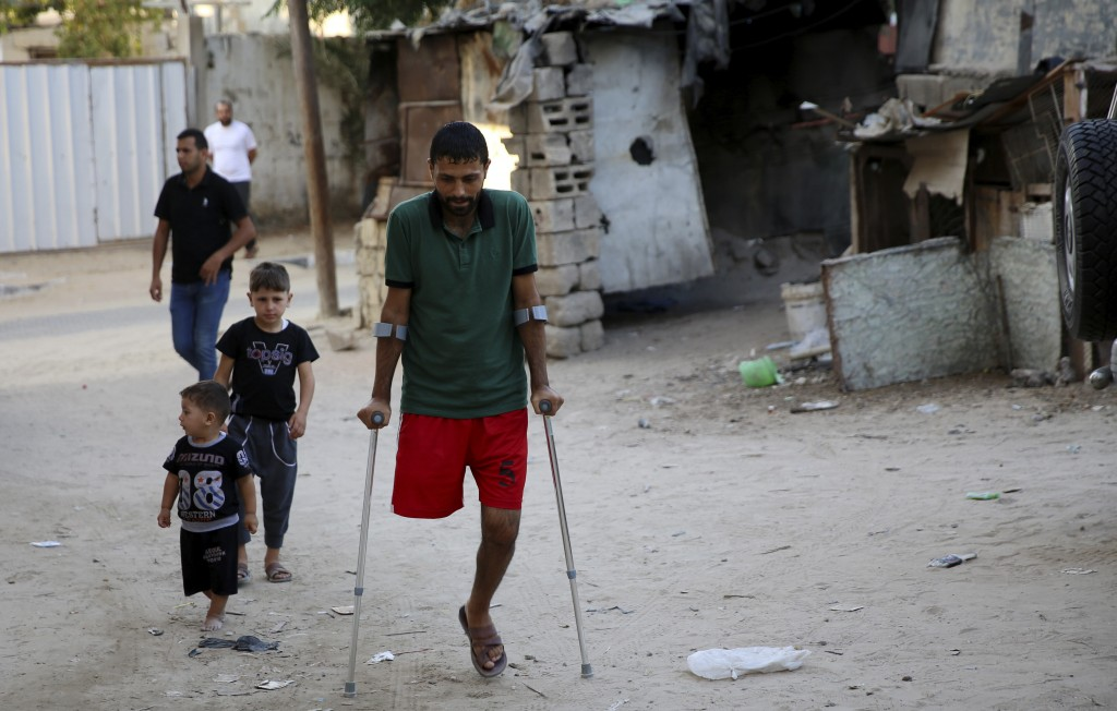 In this Wednesday, Oct. 2, 2019 photo, a Palestinian amputee Ziad al-Madani, who lost his leg when he was shot by Israeli troops during a protest on t