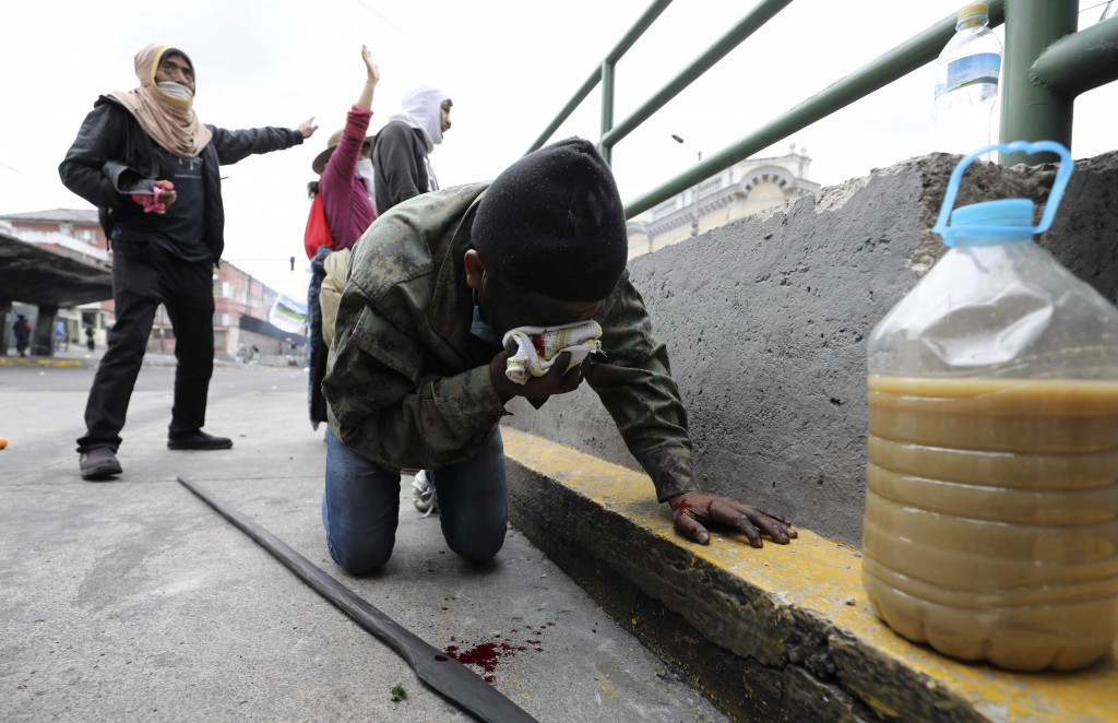 An injured anti-government demonstrator holds a rag onto his bleeding face during clashes with police in Quito, Ecuador, Friday, Oct. 11, 2019. Protes...
