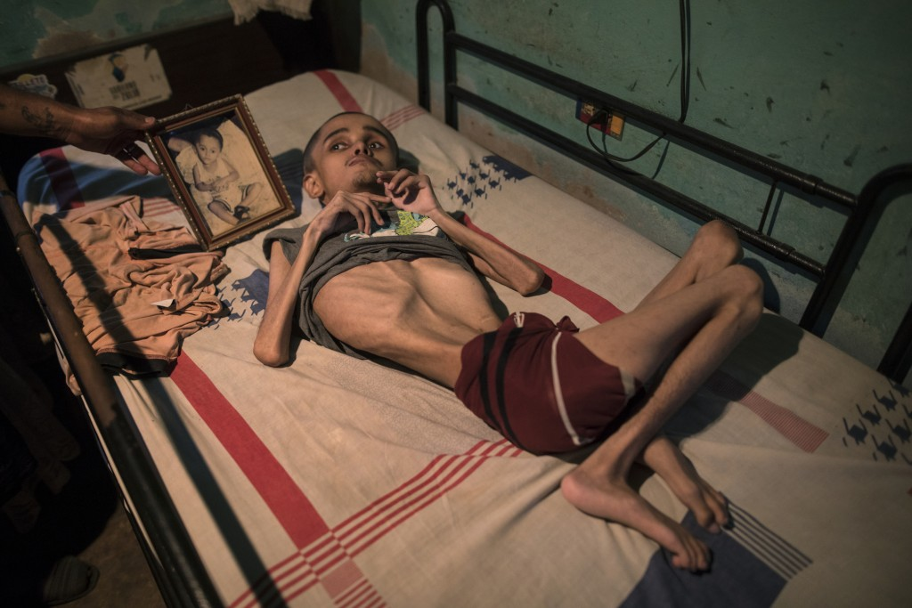 Miguel Blanco, who was born with Hydrocephalus, lays in a bed where his brother places a photograph of him when he was a toddler in Maracaibo, Venezue...