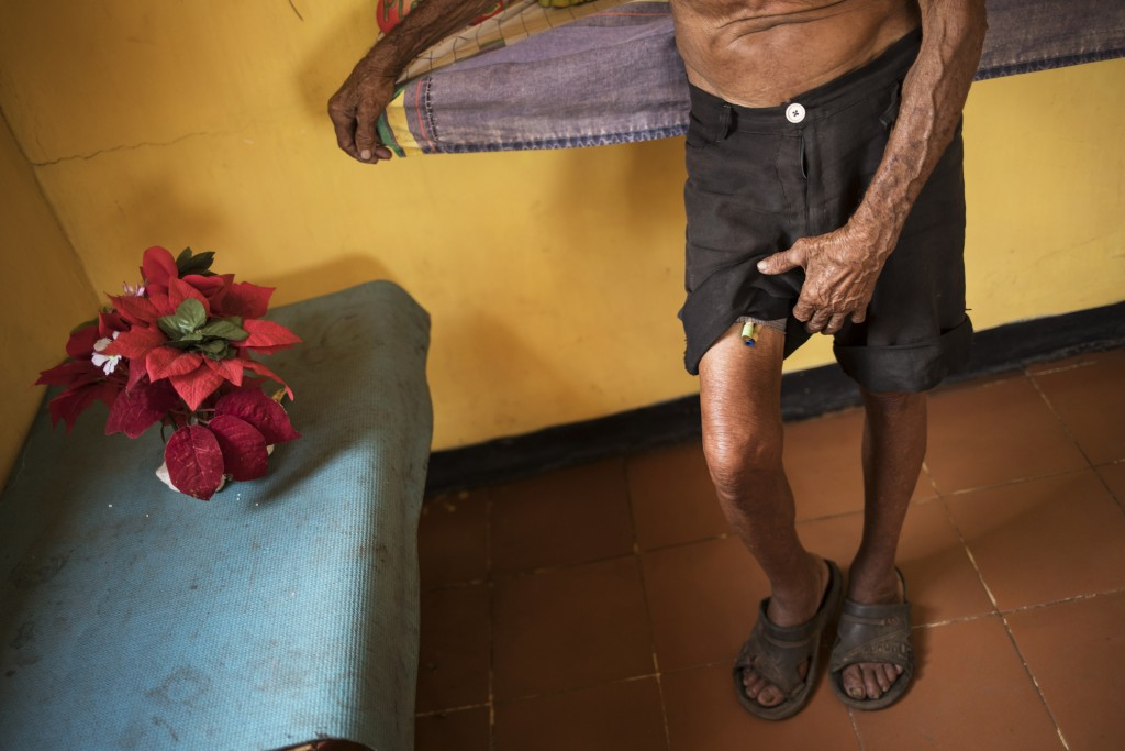 Jose Calderon lifts his shorts to show tubes that are part of his prostrate treatment in Maracaibo, Venezuela, Nov. 20, 2019. The 86-year-old said the...