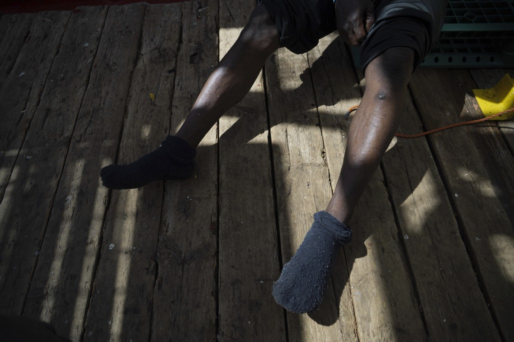 In this Sept. 19, 2019, Orobosa Bright of Nigeria shows scars on his legs from his time in Libya, as he sits from aboard the Ocean Viking humanitarian...