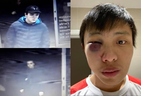 Jonathan Mok attacked in London by racist youths. (Facebook photo)
