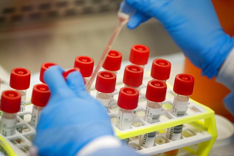 圖為紐約長島一處實驗室的檢驗人員, 正準備進行武漢肺炎病患樣本測試(美聯社)