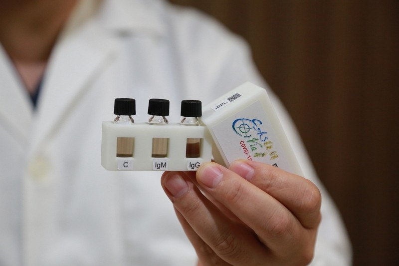 Easy Vial test (National Sun Yat-sen University's Institute of Medical Science and Technology photo)