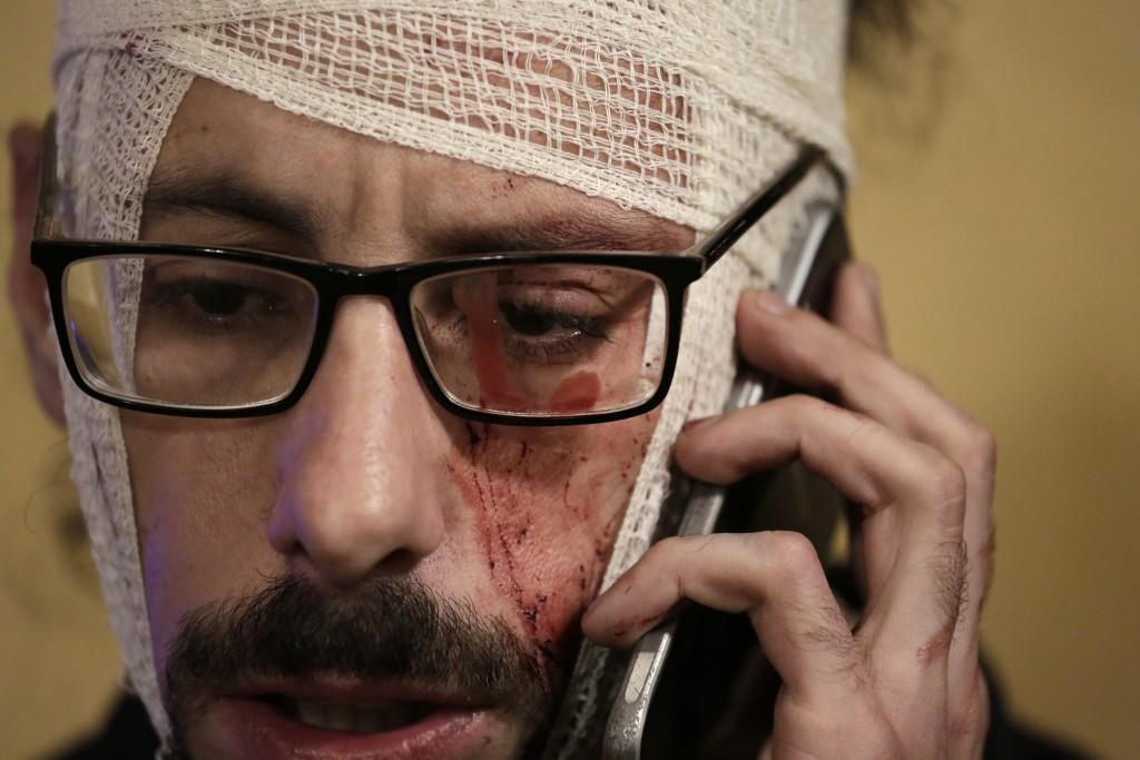 An injured anti-government protester speaks on his mobile during a protest in Beirut, Lebanon, Saturday, Jan. 18, 2020. Police fired volleys of tear g...