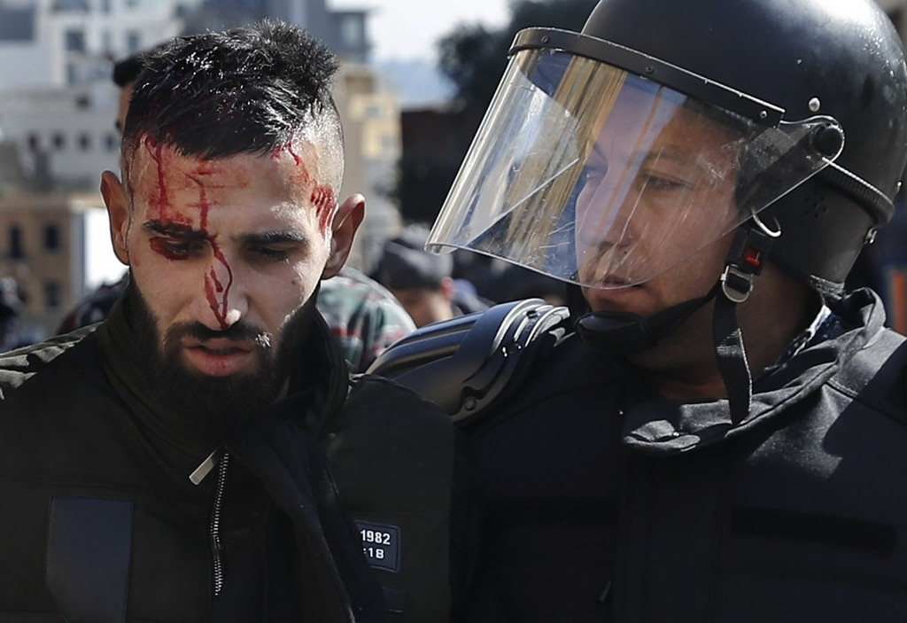 FILE - In this Monday, Jan. 27, 2020 file photo, riot police arrest an injured anti-government protester, in downtown Beirut, Lebanon. Protester's dem...