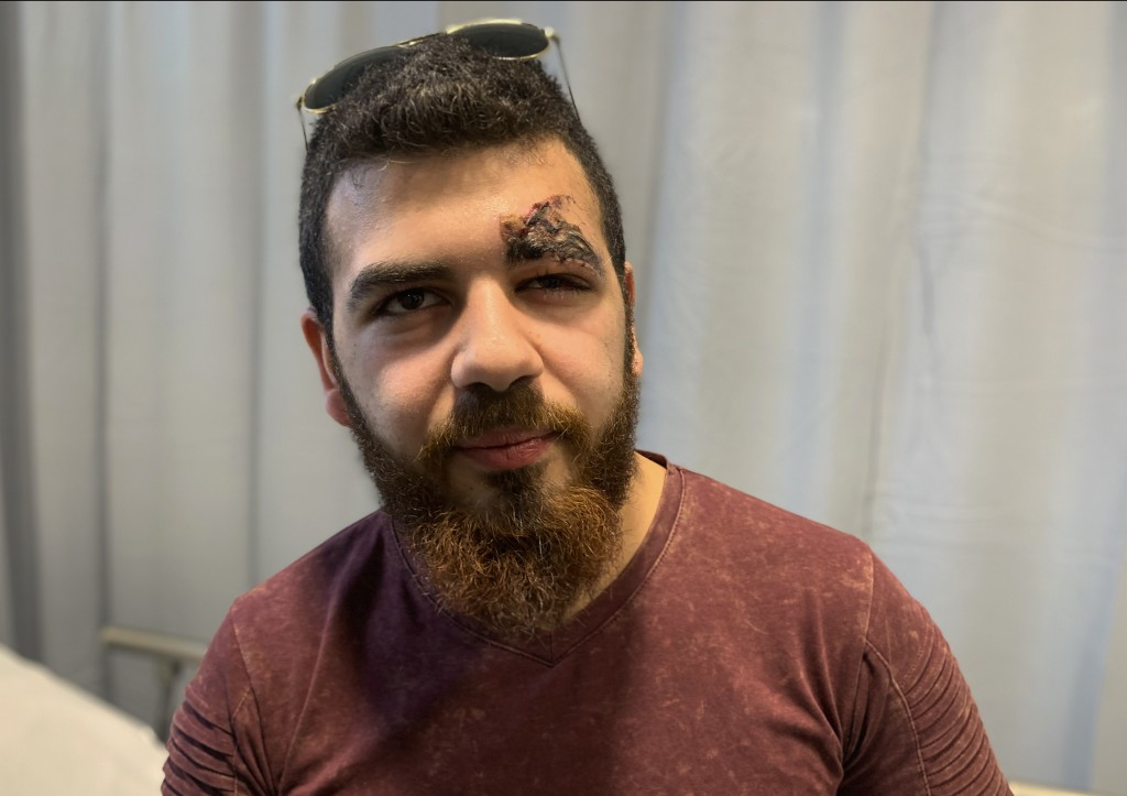In this Jan. 29, 2020 photo, anti-government protester Charbel Francis, who was hit by a tear gas canister above his left eye at a protest last month,...