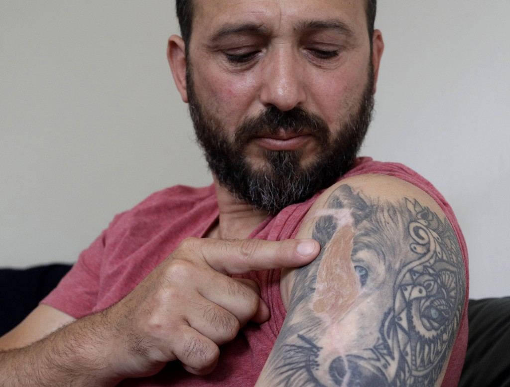 In this Tuesday, Feb. 25, 2020, photo, Al Noor mosque shooting survivor Temel Atacocugu points to the scar of a bullet wound in his arm during an inte...