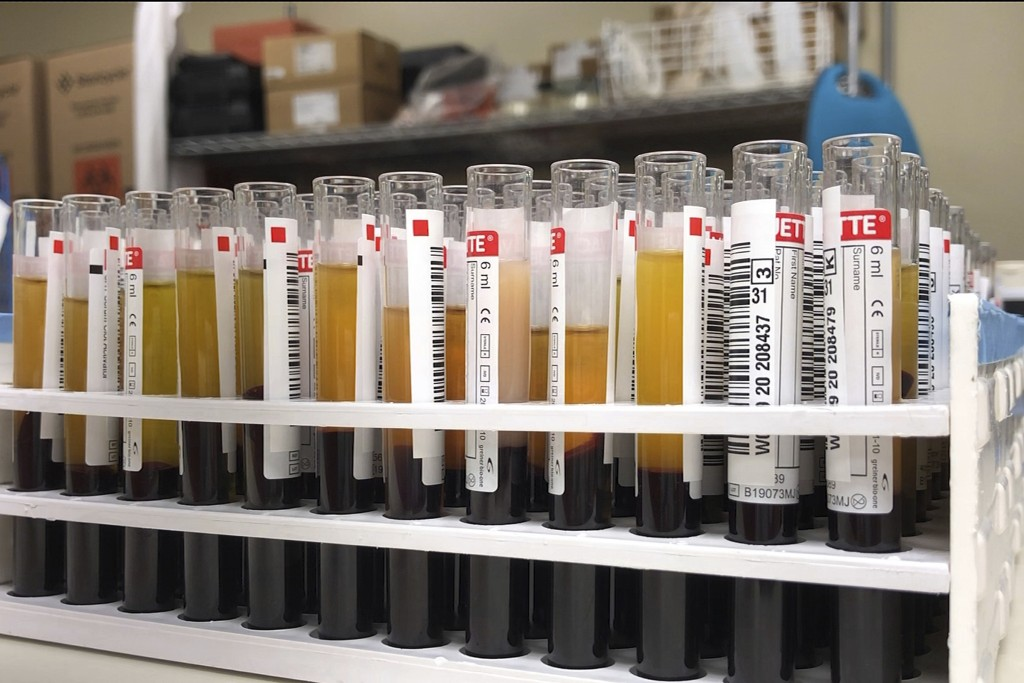 This April 15, 2020 photo provided by New York Blood Center Enterprises shows vials of blood from donors for testing at the Blood Bank of Delmarva Chr...