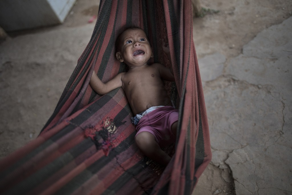 FILE - In this Nov. 25, 2019 file photo, Osmery Vargas, who is malnourished, cries in a hammock as she and her 7-year-old sister Yasmery Vargas wait f...