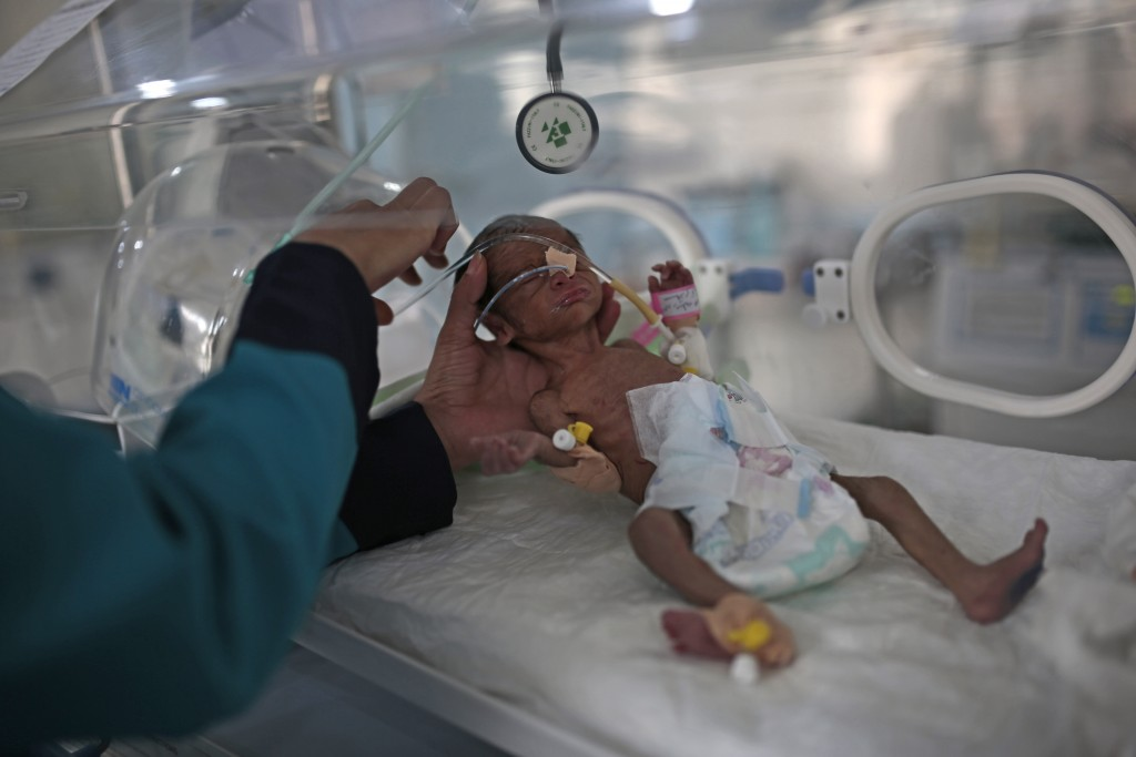 FILE - In this Saturday, June 27, 2020 file photo, a medic checks a malnourished newborn baby inside an incubator at Al-Sabeen hospital in Sanaa, Yeme...