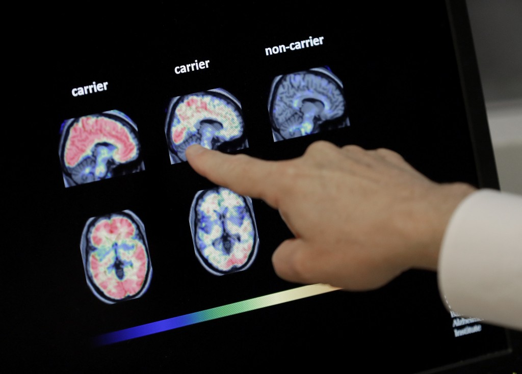 FILE - In this Aug. 14, 2018 file photo, a doctor looks at PET brain scans in Phoenix. A big study to help Medicare officials decide whether to start ...