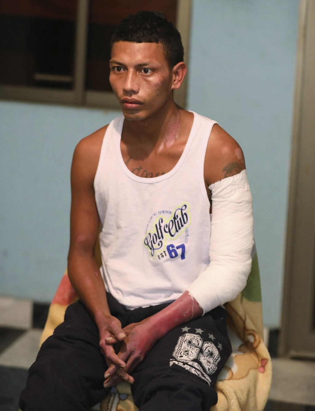 Moto-taxi driver Manuel Peña, who survived a deadly fuel tank explosion in the his village of Tasajera when people tried to siphon fuel from a crashed...