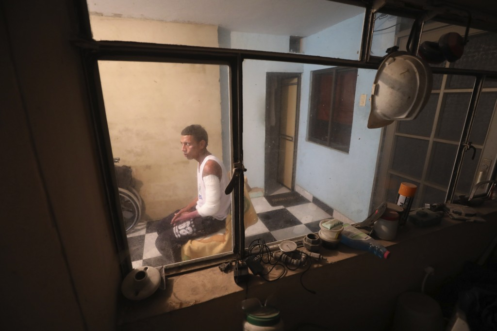 Moto-taxi driver Manuel Peña, who survived a deadly fuel tank explosion in his village of Tasajera when people tried to siphon fuel from a crashed fue...