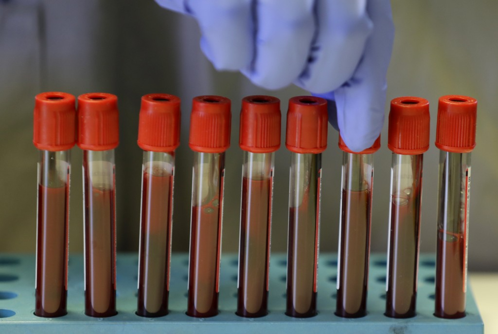 Blood samples from volunteers are handled in the laboratory at Imperial College in London, Thursday, July 30, 2020. Imperial College is working on the...