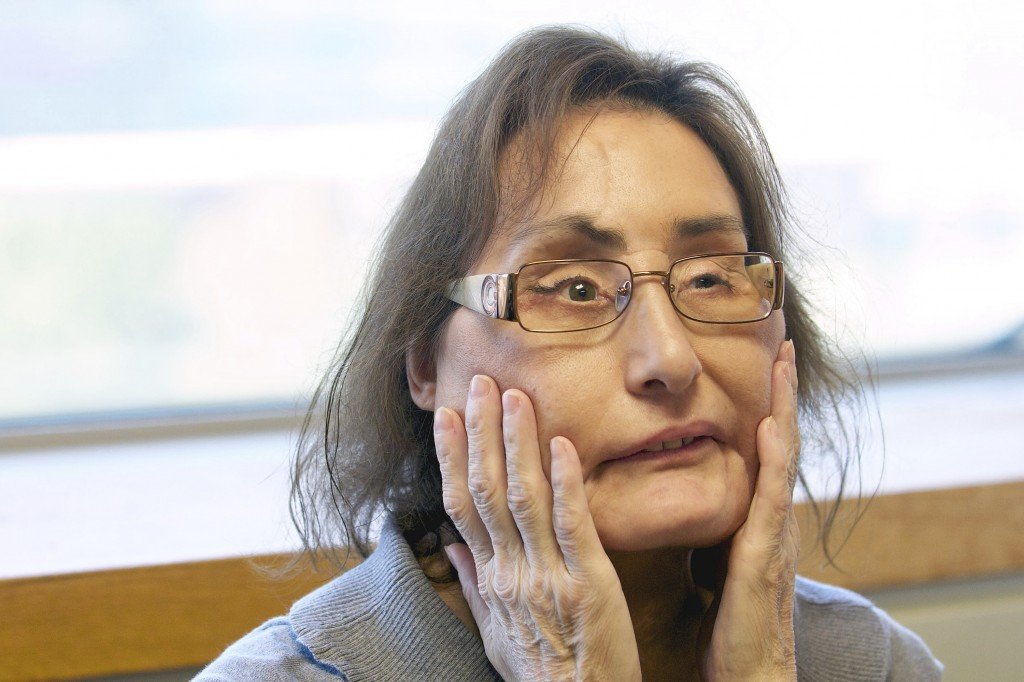 FILE - In this Sept. 14, 2010, file photo, Connie Culp, the nation's first partial face transplant recipient, speaks with the Associated Press at the ...