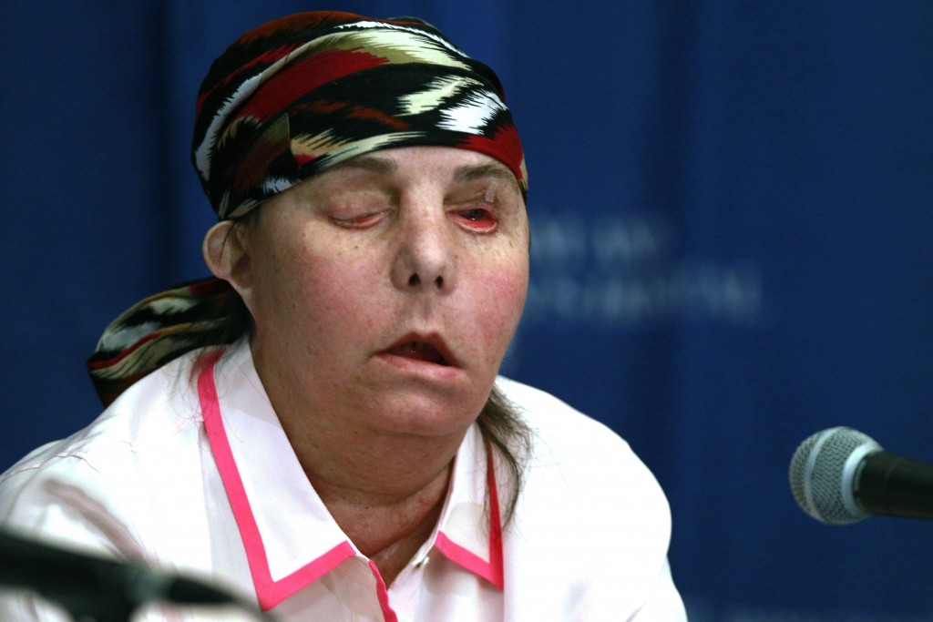 FILE - In this May 1, 2013, file photo, Carmen Blandin Tarleton speaks at Brigham and Women's Hospital in Boston following a face transplant. In Febru...
