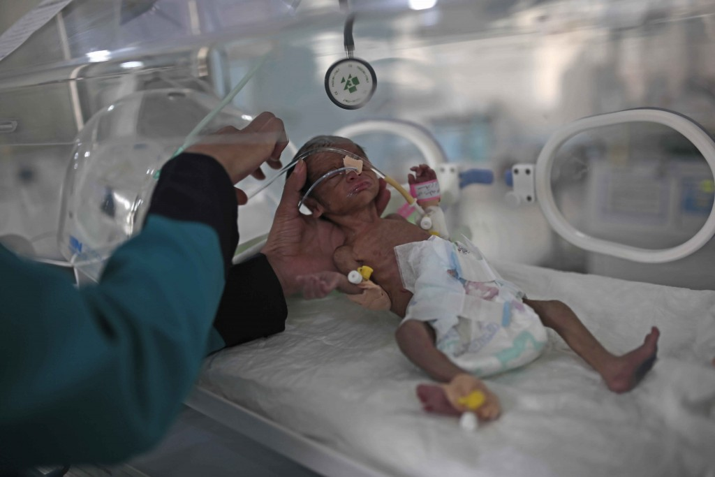 FILE - In this June 27, 2020 file photo, a medic checks a malnourished newborn baby inside an incubator at Al-Sabeen hospital in Sanaa, Yemen. Human R...