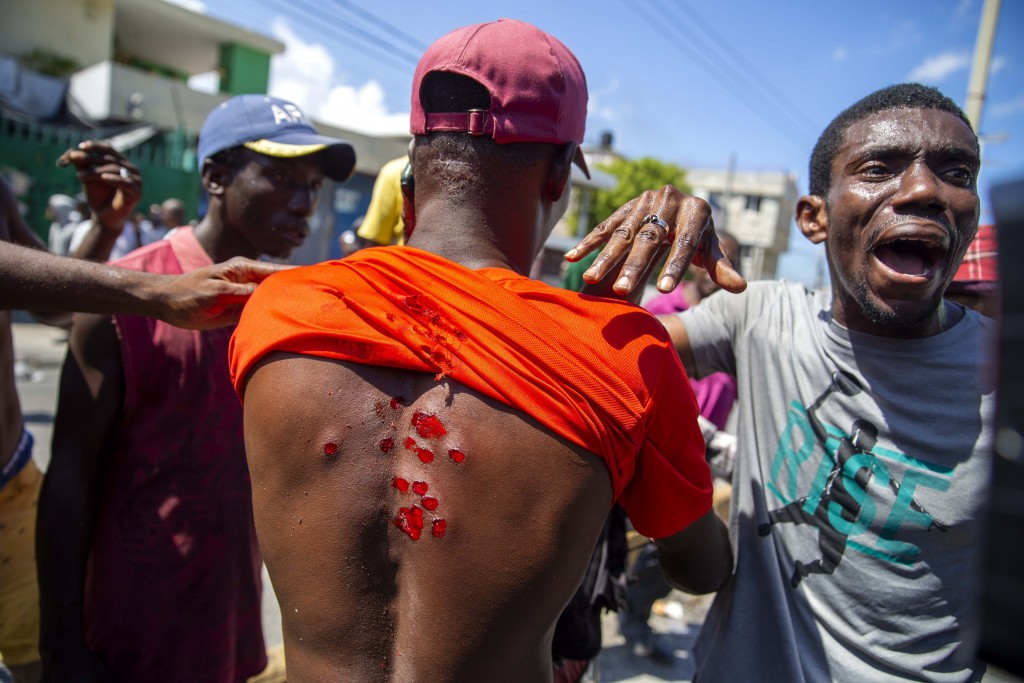 A protester shows his wounds caused by rubber bullets fired by police to disperse protesters demanding the resignation of President Jovenel Moise in P...
