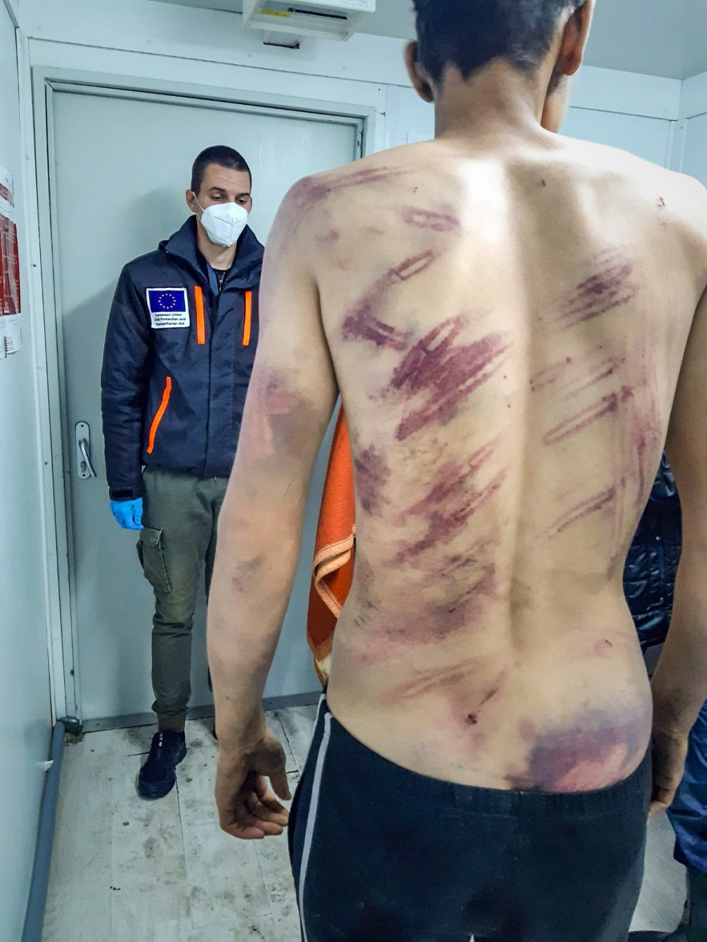 In this undated image, a migrant man alleging he was brutalized and summarily expelled back to Bosnia by Croatian law-enforcement officers when they t...