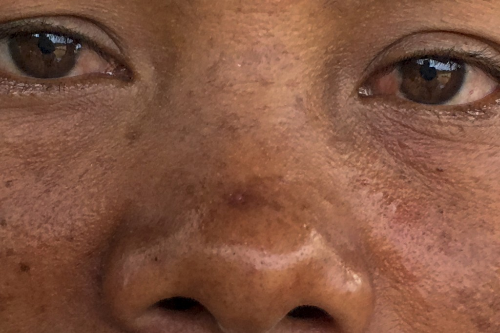 A woman who sprays pesticides in a palm oil plantation blames her red, irritated eyes on the chemicals she works with, in Sumatra, Indonesia, Saturday...
