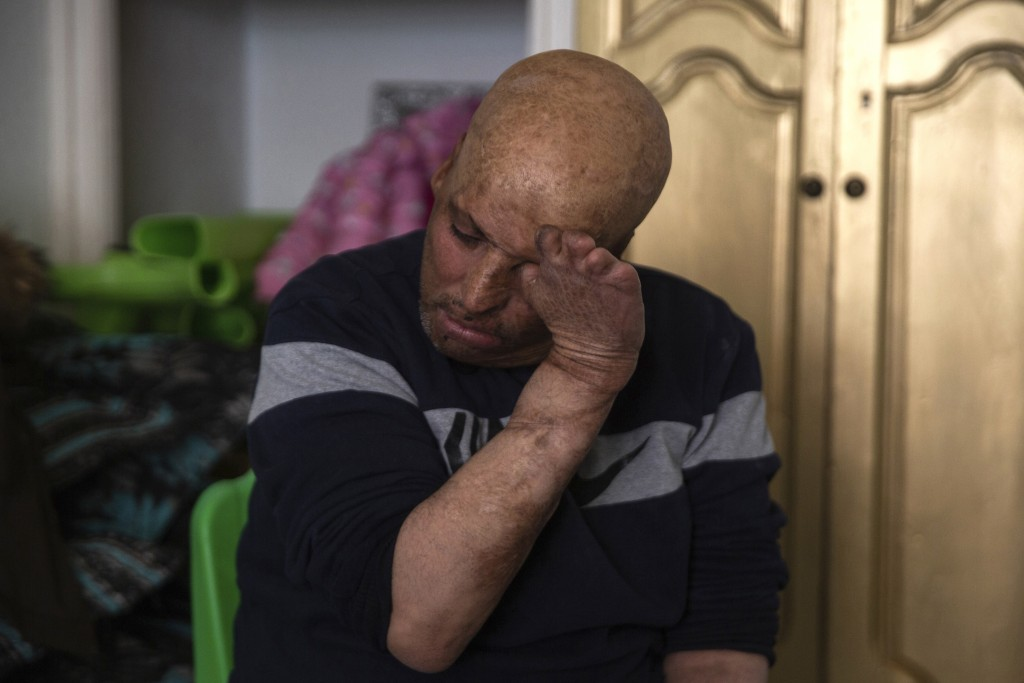 Hosni Kalaia, 49, reacts in his house in Kasserine, Tunisia, Friday, Dec. 11, 2020. He's among hundreds of Tunisians who have turned to the desperate ...