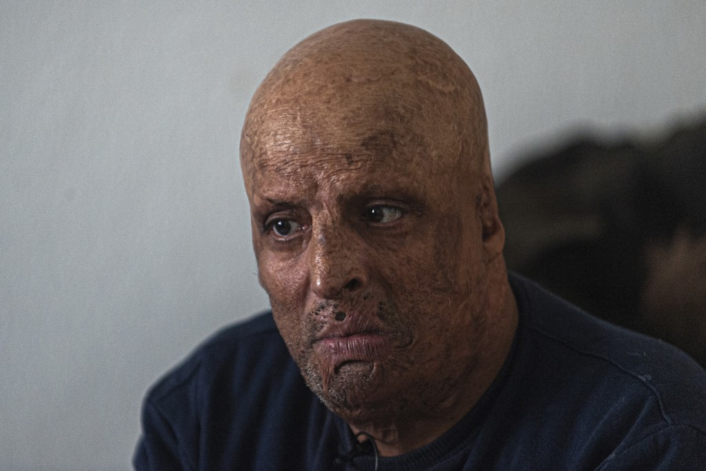 Hosni Kalaia, 49, talks in his house in Kasserine, Tunisia, Friday, Dec. 11, 2020. He's among hundreds of Tunisians who have turned to the desperate a...