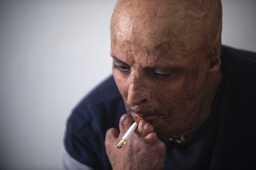 Hosni Kalaia, 49, smokes a cigarette in his house in Kasserine, Tunisia, Friday Dec.11, 2020. He's among hundreds of Tunisians who have turned to the ...