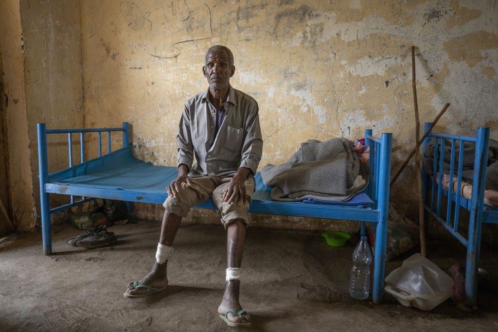 Ethnic Tigrayan survivor Guesh Tedla, 54, from Rawyan, Ethiopia, shows his wounds from sticks, inside a shelter, in Hamdeyat Transition Center near th...