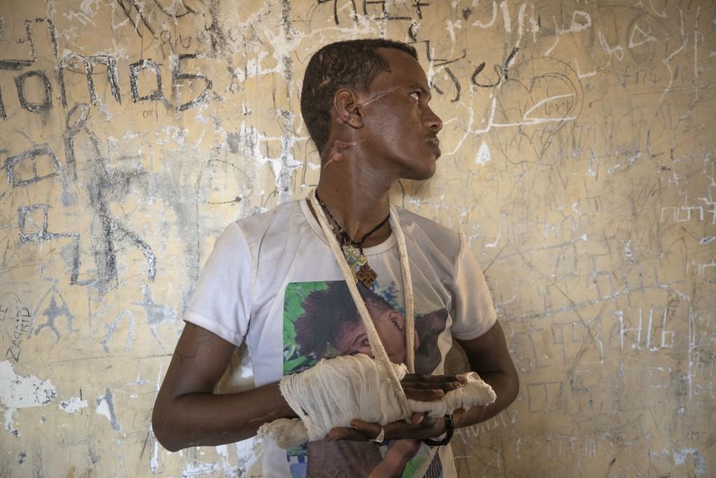Ethnic Tigrayan survivor Abrahaley Minasbo, 22, from Mai-Kadra, Ethiopia, shows his wounds from machetes, inside a shelter, in Hamdeyat Transition Cen...