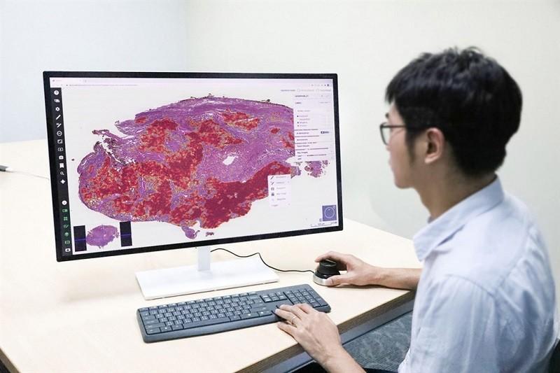 台北醫學大學巨量影像資料庫研究計畫,以人工智慧AI 系統自動辨識肺部腫瘤,準確率達95%以上,且每名病人僅須3到5分鐘就可判讀。(北醫大提...