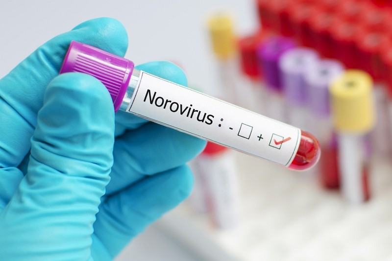 Blood sample positive for norovirus (Getty Images)
