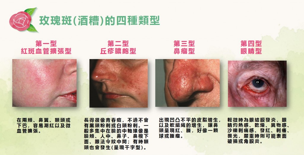 長期臉紅、長痘痘 原來是「蠕形螨蟲」惹禍!醫師曝六大因素致「玫瑰斑」更惡化