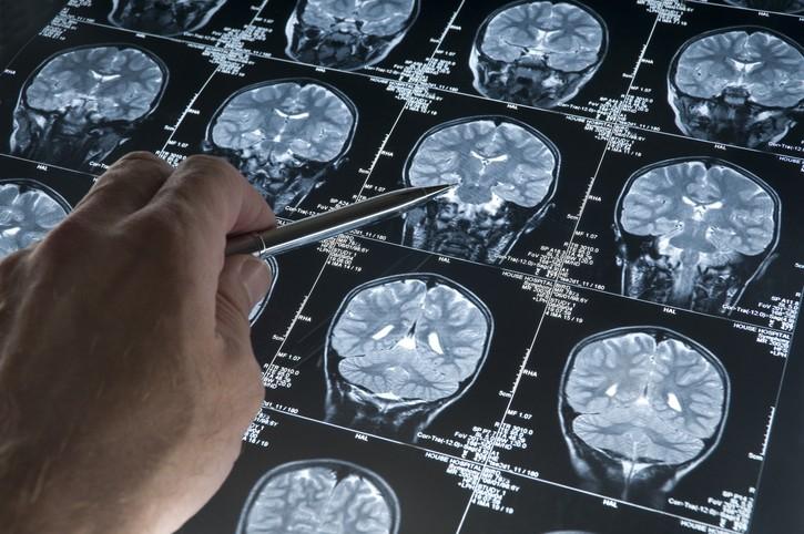 美國FDA週一批准了治療阿茲海默症的藥物Aduhelm,這是近20年來第一款治療該疾病的新藥。(僅為示意圖/Getty Images)