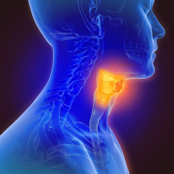 6成晚期口腔癌病患高達半數恐面臨復發。(示意圖/Getty Images)