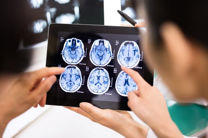 多發性硬化症在全球已有280萬患者,平均每5分鐘,就有1人確診。 (示意圖/Getty Images)