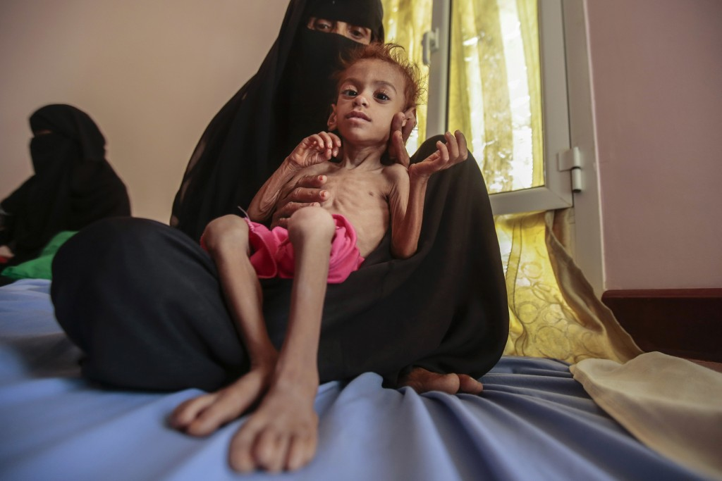 FILE - In this Oct. 1, 2018, file photo, a woman holds a malnourished boy at the Aslam Health Center, in Hajjah, Yemen. A leading aid organization on ...