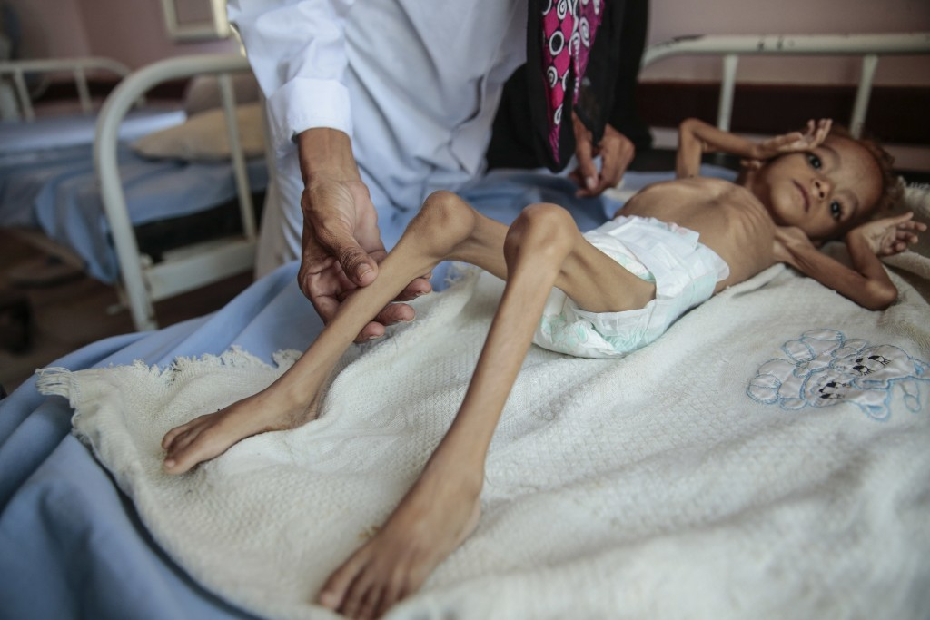 FILE - In this Oct. 1, 2018, file photo, a severely malnourished boy rests on a hospital bed at the Aslam Health Center in Hajjah, Yemen. A leading ai...