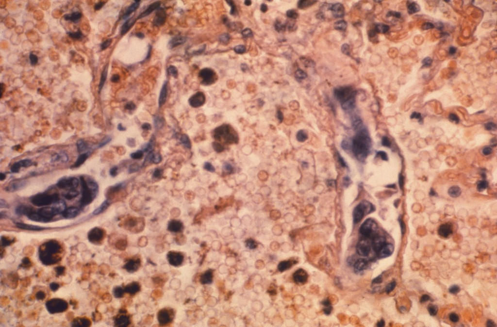 FILE - This 1964 photo made available by the Centers for Disease Control and Prevention shows a lung tissue specimen from a patient with adenocarcinom...