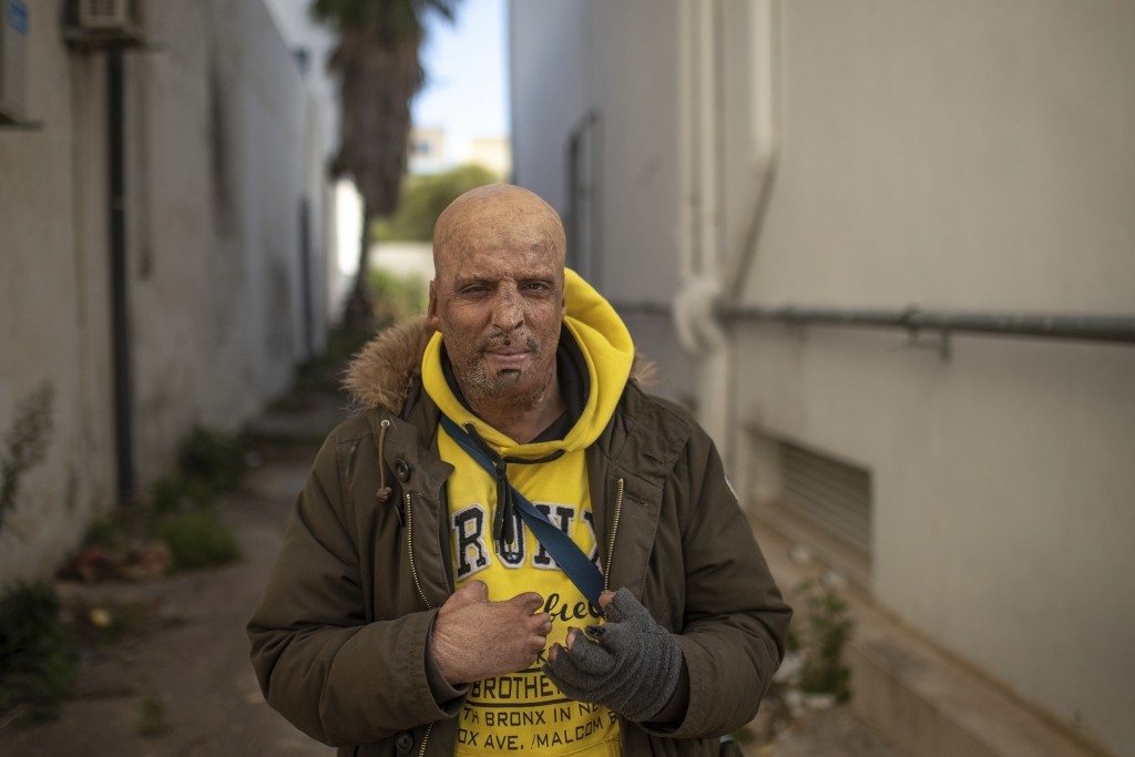 Hosni Kalaeyah, 49, a protester who self immolated during Tunisia's democratic uprising 10 years ago, poses for a portrait in Tunis, Tunisia, Tuesday,...