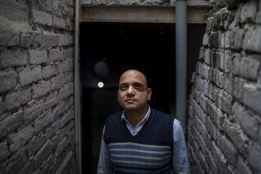 Muhammad Nasir Khan, who was shot by a Hindu mob during the February 2020 communal riots, poses for a photograph inside his home in North Ghonda, one ...
